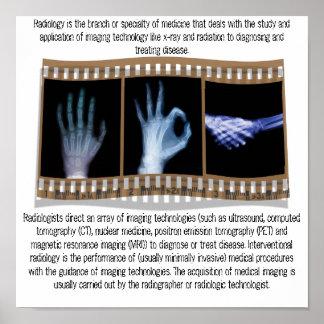 RADIOLOGY - XRAY POSTER - HAND, OK, HANDSHAKE