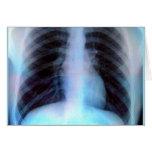 Ribcage Xray Skeleton