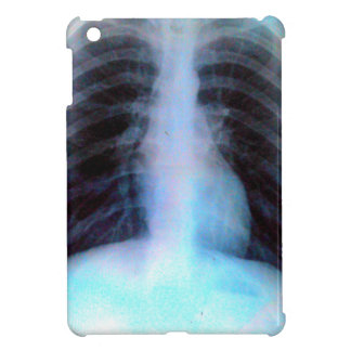 Ribcage Xray Skeleton iPad Mini Case