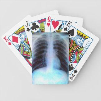 Ribcage Xray Skeleton Poker Cards