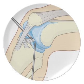 Rigid Endoscopy Procedure Plate