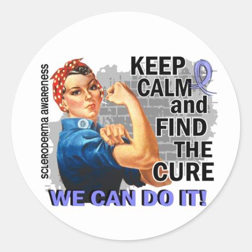 Rosie Keep Calm Scleroderma.png Stickers