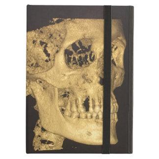 Scary Skull iPad Air Case