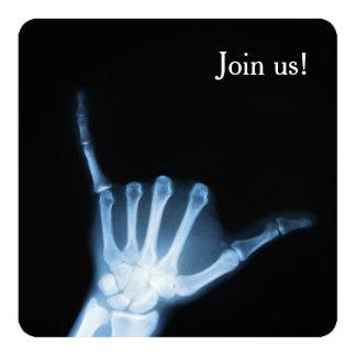 Shaka Sign X-Ray (Hang Loose) 13 Cm X 13 Cm Square Invitation Card