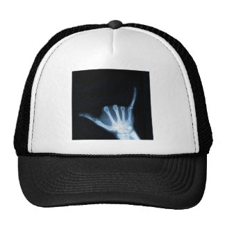 Shaka Sign X-Ray (Hang Loose) Trucker Hat