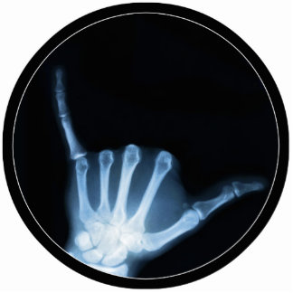 Shaka Sign X-Ray (Hang Loose) Standing Photo Sculpture