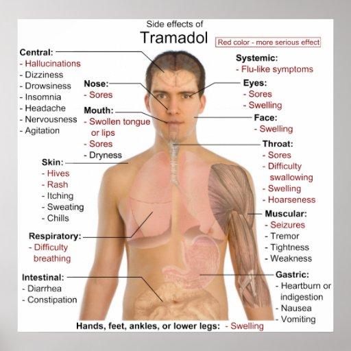 Side Effects Chart for Tramadol Hydrochloride