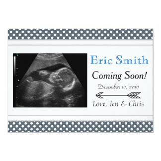 Simple Unisex Ultrasound Baby Announcement