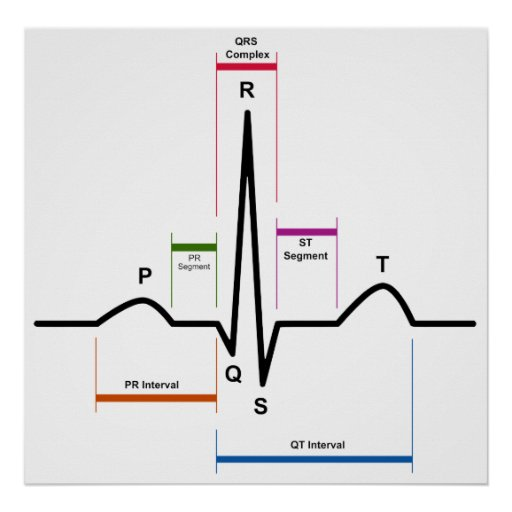sinus rhythm in an electrocardiogram ecg diagram poster. Black Bedroom Furniture Sets. Home Design Ideas