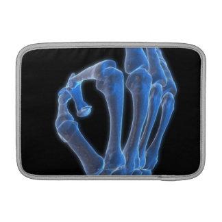Skeletal Hand Gesture MacBook Sleeve