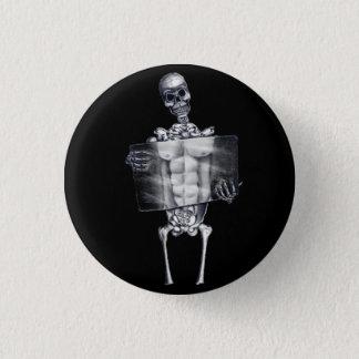 Skeleton Chest Xray Button