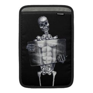 Skeleton Chest Xray MacBook Air Sleeve