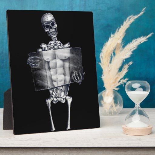 Skeleton Chest Xray Plaque