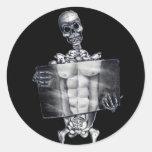 Skeleton Chest Xray Stickers