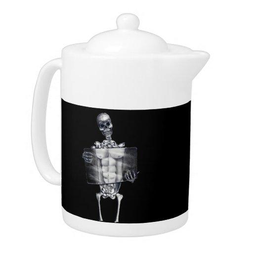 Skeleton Chest Xray Teapot