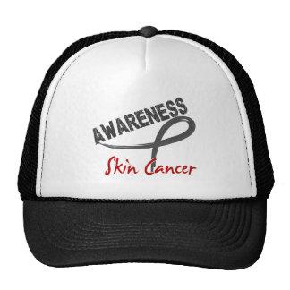 Skin Cancer Awareness 3 Trucker Hats