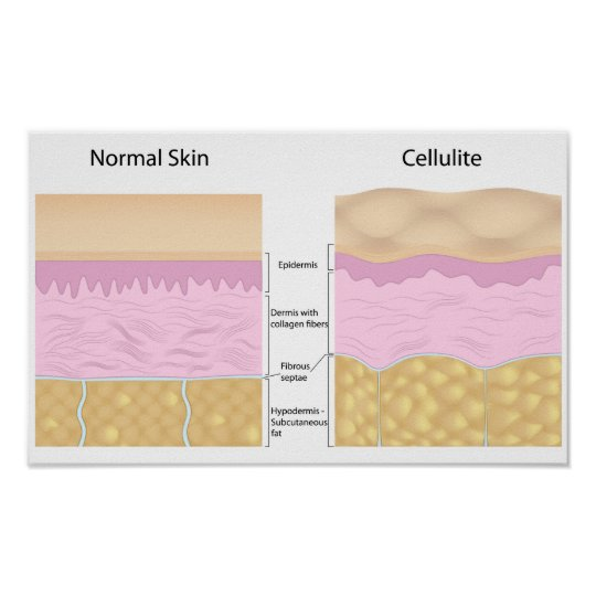 Skin cellulite  Poster