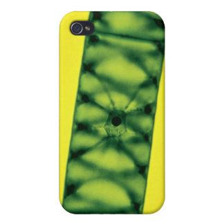 Spirogyra Green Algae Cases For iPhone 4