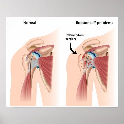 Sport injury shoulder impingement Poster