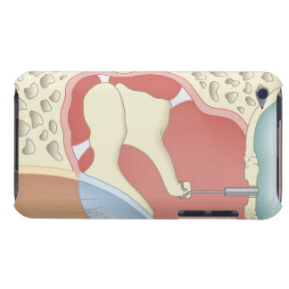 Stapedotomy Surgery iPod Touch Covers