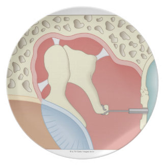 Stapedotomy Surgery Plate