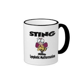 STING Lymphatic Malformation Coffee Mugs