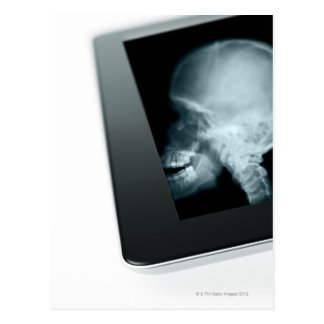 Studio shot of digital tablet with x-ray of postcard