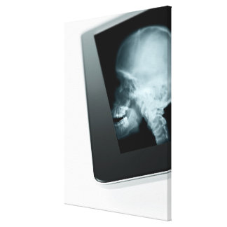 Studio shot of digital tablet with x-ray of stretched canvas print