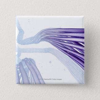 Stylised nerve fibers 15 cm square badge
