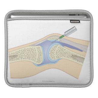 Synovial Fluid from Knee iPad Sleeve