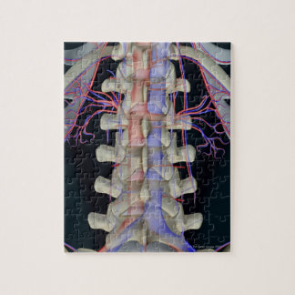 The blood supply of lumbar vertebrae jigsaw puzzle