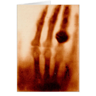 The First X-Ray, 1901, Photograph Card