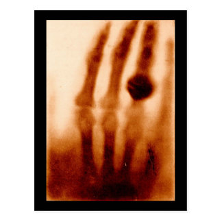 The First X-Ray, 1901, Photograph Postcard