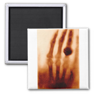 The First X-Ray, 1901, Photograph Square Magnet