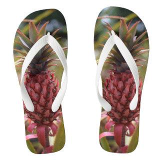 The Pink Pineapple Flip Flops