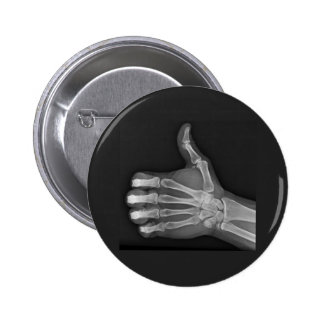 Thumbs up 6 cm round badge