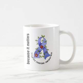 Thyroid Disease Flower Ribbon 3 Coffee Mug