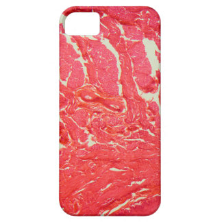 Tongue Cells under the Microscope Barely There iPhone 5 Case