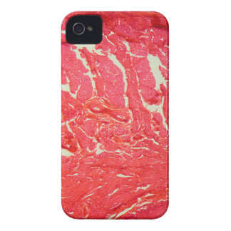 Tongue Cells under the Microscope iPhone 4 Cases
