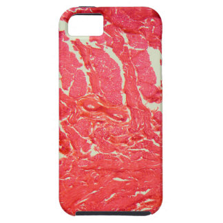 Tongue Cells under the Microscope iPhone 5 Case