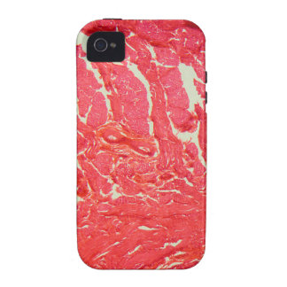 Tongue Cells under the Microscope iPhone 4 Cover