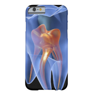 Tooth, transparent cross section of a molar barely there iPhone 6 case
