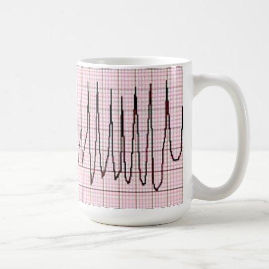 Torsades Coffee Mug