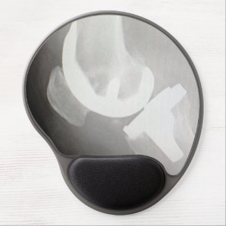 Total Knee Replacement Mousepad Gel Mouse Mat