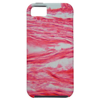 Trachea Cells under the Microscope iPhone 5 Cases