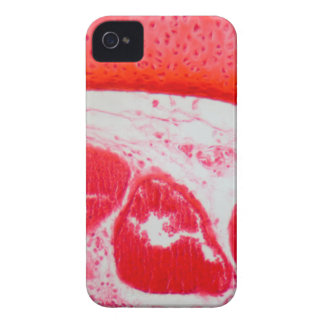 Trachea Cells under the Microscope Case-Mate iPhone 4 Cases