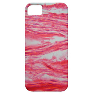 Trachea Cells under the Microscope iPhone 5 Covers