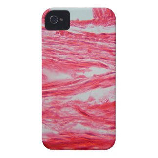 Trachea Cells under the Microscope iPhone 4 Cover