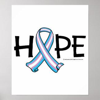 Transgender HOPE 2 Print