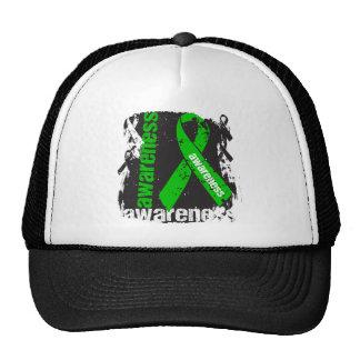 Traumatic Brain Injury Awareness Grunge Ribbon Trucker Hat